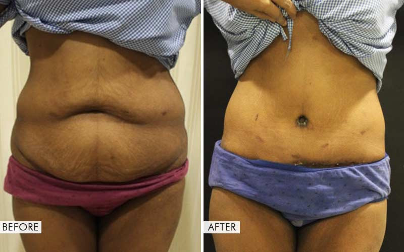 belt lipectomy surgery before and after