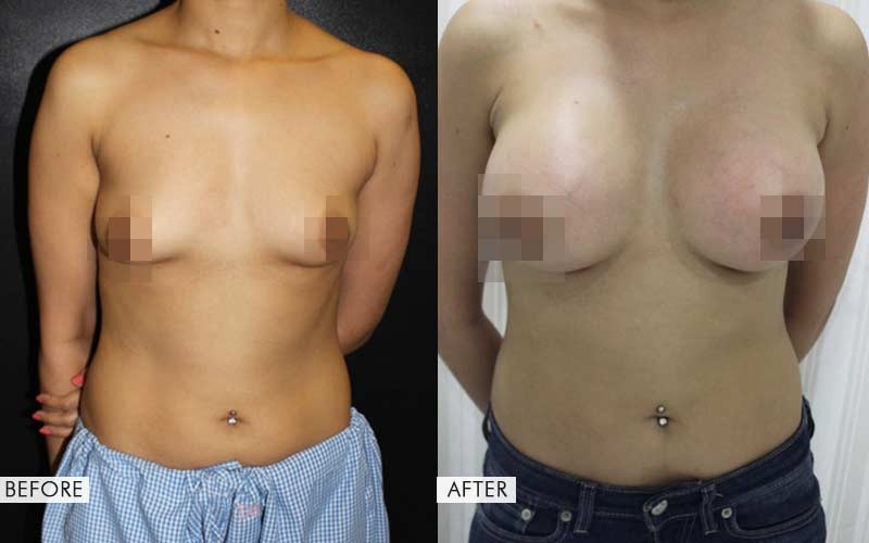 breast augmentation before and after results