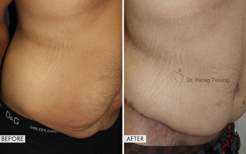 belt lipectomy before and after