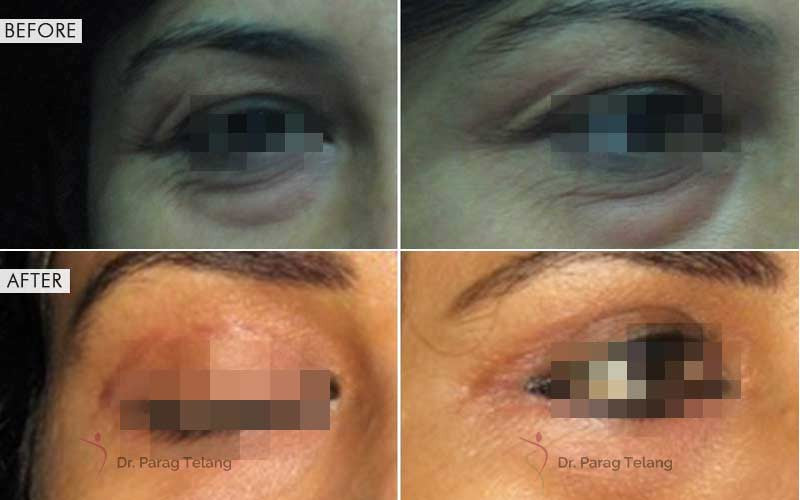 blepharoplasty surgery before and after