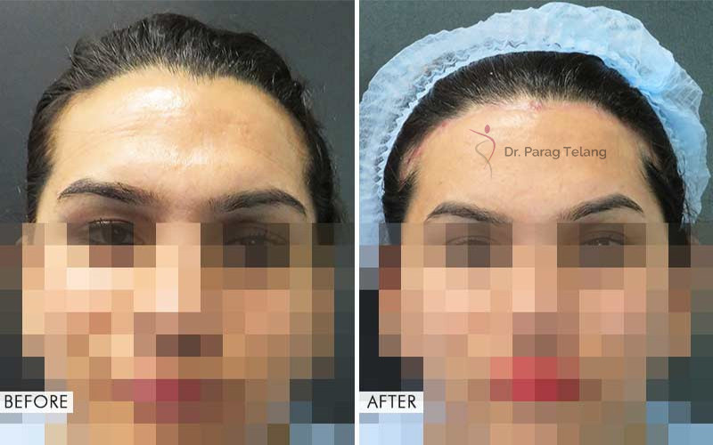 Forehead Contouring  Before After