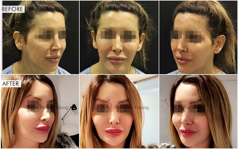V-line Jaw Surgery Before After