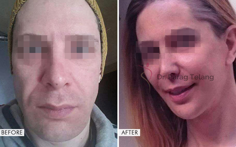 Facial Feminisation Surgery Before and After