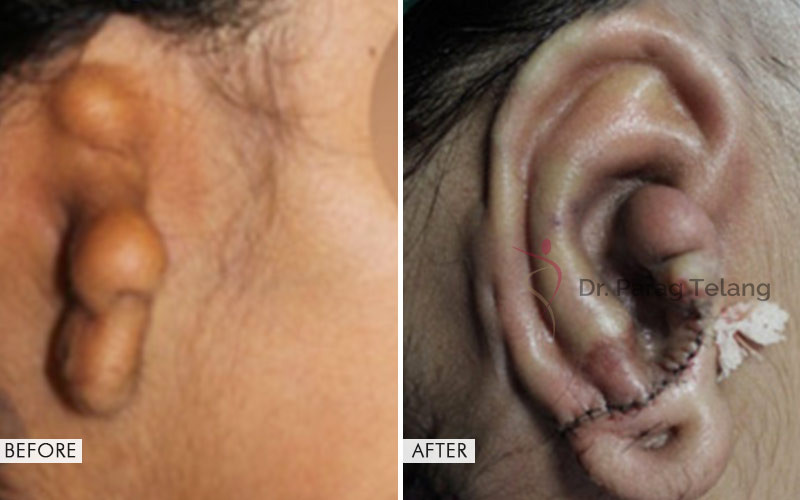 Ear Reconstruction Surgery