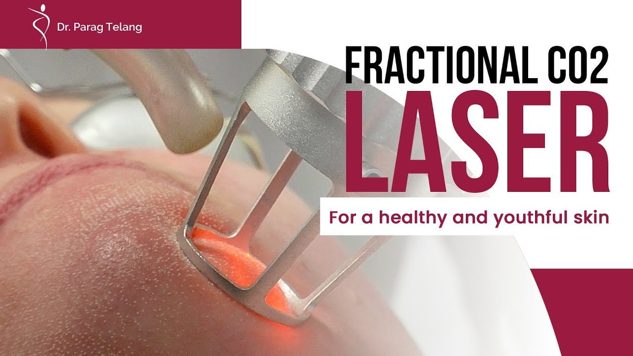 Fractional CO2 Laser: For healthy and smooth skin!