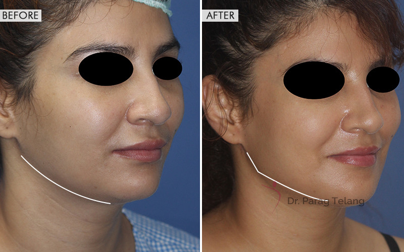 Jaw Contouring