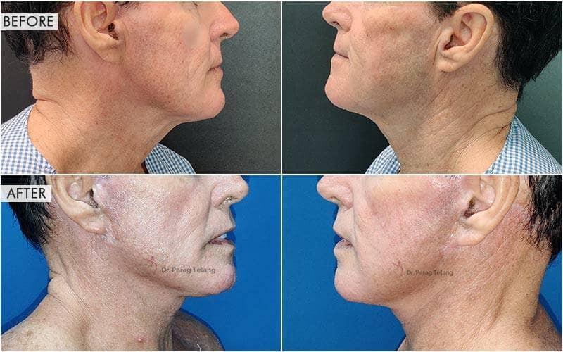 Face lift & neck lift