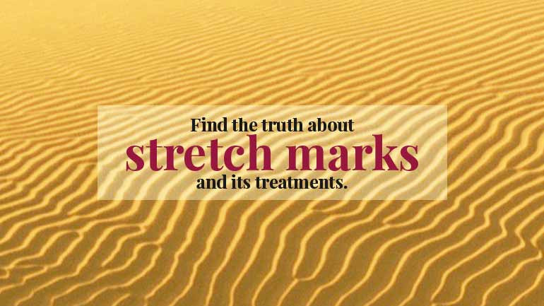 Find the Truth About Stretch Marks And its Treatments