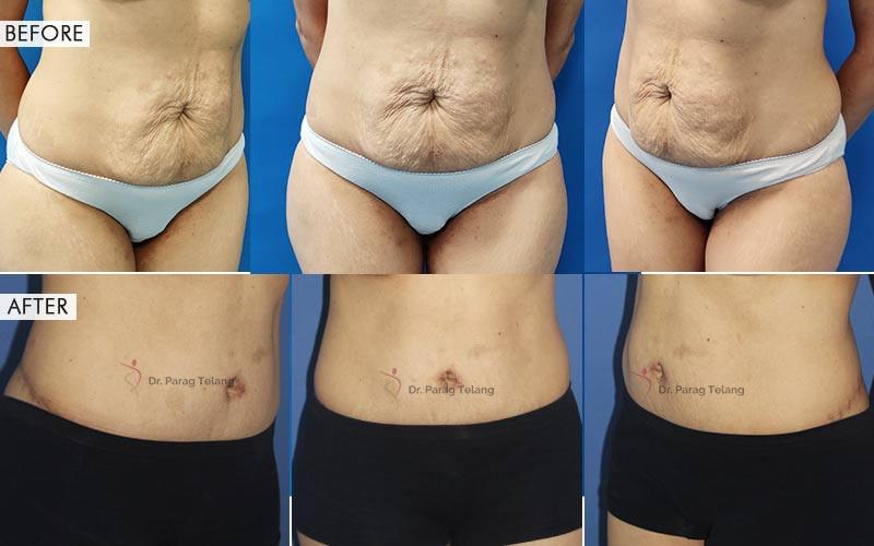 Belt Lipectomy