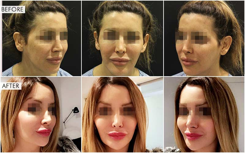 V-line jaw surgery