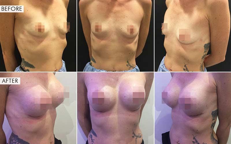 جراحة تكبير الثدي قبل بعد